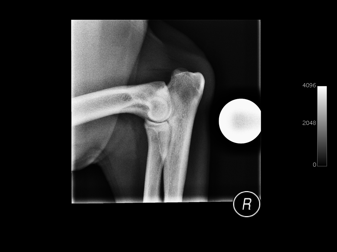 Clinical Case Challenge: Orthopedic Surgery (Dog)