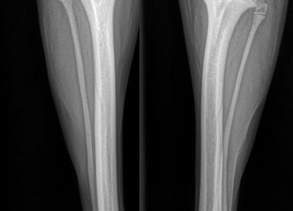 Clinical Case Challenge: More Than Hip Dysplasia?