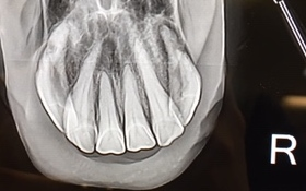Intraoral radiographs of horse's incisors