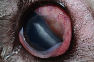 Figure 1. Clinical photograph of the left eye at presentation. Moderate diffuse conjunctival hyperemia is noted, in addition to scleral injection. A small approximately 5x3mm perilimbal tan mass is noted in the dorso-lateral region. Corneal degeneration, consistent with lipid deposition, is also apparent