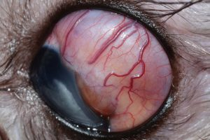 Figure 2. Clinical photograph of the left eye at presentation (medial gaze). A multi-lobulated subconjunctival mass extending from the 12-3 o'clock position and beyond the equatorial region of the globe is noted. Prominent episcleral injection is apparent.
