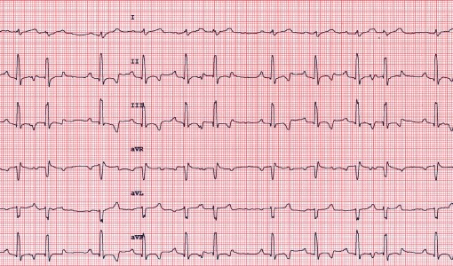 Clinical Case Challenge: Cardiology (Dog)