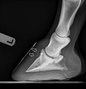 Lateral radiograph of the left front foot with an ovoid, partially mineralized soft tissue opacity at the dorsoproximal aspect of the third phalanx and a corresponding curvilinear lucent defect (*) in the dorsoproximal border of the third phalanx.