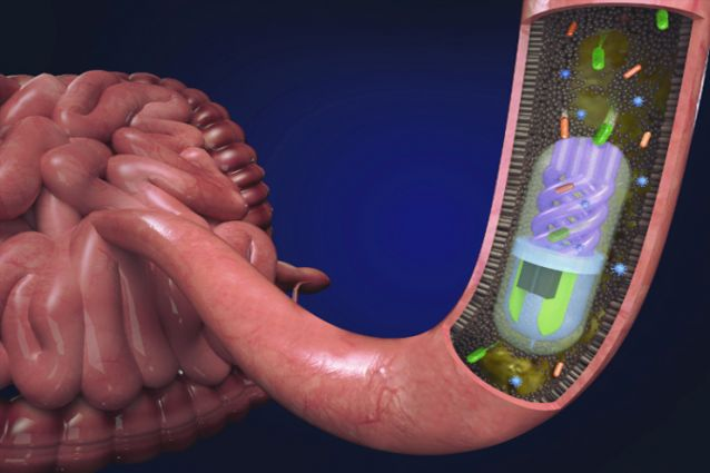 Image for 3D printed pill samples gut microbiome to aid diagnosis and treatment