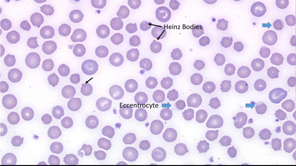 Figure 2: Wright stained blood smear, at 500x magnification. Heinz bodies are indicated by black arrows. Eccentrocytes are indicated by blue arrowheads. There are also several blue-tinged polychromatophils consistent with a regenerative response to anemia.