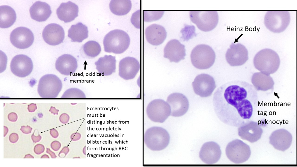 Figure 3: The images on the right and upper left show fields from Baci's Wright stained blood smear, at 1000x magnification, illustrating an eccentrocyte, Heinz body, and a pyknocyte. The image in the lower includes 2 blister cells, which contain a large, completely clear vacuole that forms as a RBC membrane is folded as it passes fibrin strands in an abnormal vascular bed.