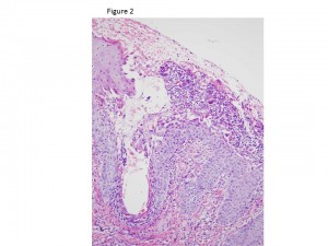 photos for the dermatology_clinical case challenge figures_buster[2]