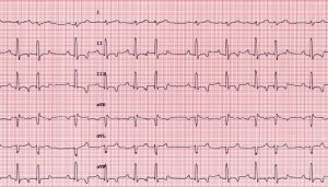 Figure 1: Six-lead ECG obtained from a dog with right-sided congestive heart failure and a cardiac mass. The ECG shows normal sinus rhythm with notched R waves and occasional atrial premature contractions (2nd, 6th, and 10th complexes from the right). 50 mm/sec; 1 cm=1mV.