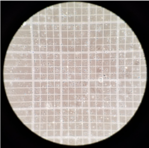 Sperm being counted on hemocytometer.